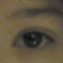Now, inner corner visibly sagging creating harsh look. Also cannot look left towards inner corner without feeling pushed back (unless I lift inner eyebrow with my finger). Inner eyebrow also simultaneously drooping with inner eyelid.