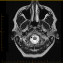 T2 MRI Image 1 - was done of brain but shows nose