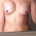 12 weeks post-op after 2nd surgery on left breast - left implant sitting high