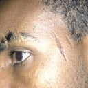 The blade scars on the eyebrow and temple.