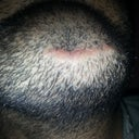 And issue is also that hair do not come at that injury spot point.