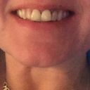 My teeth