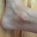 Reticular and spider veins right ankle