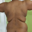 Saggy arms, hanging bra fat, saggy back rolls and flanks