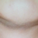 Dents and asymmetry in the chin and jawline. Scar from previous implant removal