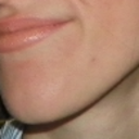 Appearance of chin with relaxed facial muscle.