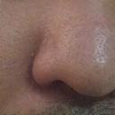 largest bump is centered on nose