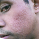 Acne Scars left side 1