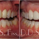 Example of someone who fixed there midline with veneers which I am getting