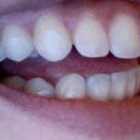 left side ( back molars have gotten flat but not my front left cuspid so much)
