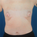 Front photo from a breast sculptor imaging machine.