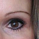 left eye before. Would Fat grafting? Implants? Cheek lift? Ptosis fix? ?????