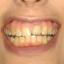as you see, my front right tooth has dental implant.