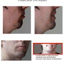 4 years after chin implant. Struggle with lip falling down on certain words/letters.