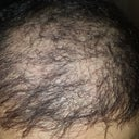 4000 grafts transplanted on October 2015