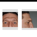 Not like this, this is what comes up when I search brow bone shaving. This is not what I want.