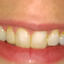 Two front teeth with composite fillings