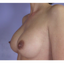 "My ""Ideal Boob"" size"