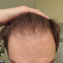 June 2016 current hairline