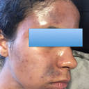 Discolouration above upper lip, forehead, and chin