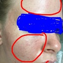 After: Irritated blotches resembling heat rash on temples and forehead, pin point holes, redness