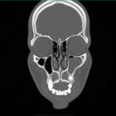 large mucous retention cyst in right maxillary sinus