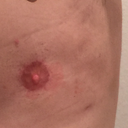 Lumpiness on outer edges of chest