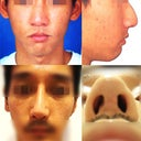 top two pics (original nose),