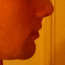 nose 11 days post-up