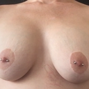 relaxed pecs arms implants too high nipples too low
