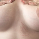 Displacing by pushing down creating fuller breast and higher nipples