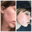Before + after laser/fat transfer to scars