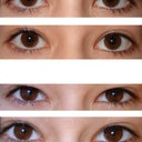 front view of my eyes.