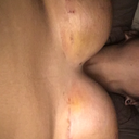 15 days post op