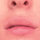 Here is my lip currently. I am not intentionally making it look lopsided, fyi. Why is it like this in the corner? Is it from uneven filler, or has the implant been bent back/torn/lopsided?