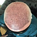 FUE Hair Transplant image