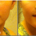The before is my nose now (LEFT SIDE), and the after is what I want it to look like (RIGHT SIDE)