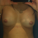12 days after 1st surgery. Left Scar in the crease. Left breast seems more full
