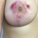 break down of my left nipple scars