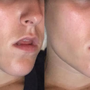 Sucking cheeks in Pre-photoshop on left | Post photoshop on right (ideal)