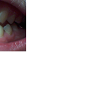 will Scaling and Root Planing fix those white spots on the tooth of my teeth? preventing bonding work? and whiten them only?