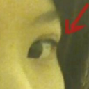Now, excess skin visible. I am not exaggerating when I say it is exponentially sagging recently (as in day-to-day basis) as the pressure gets heavier and heavier on my eye, slowly forcing me to only look down for comfort.