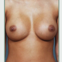 Breasts I would like to have. Nipple placement and roundness.
