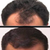 State-of-the-Art Solution for Hair Loss